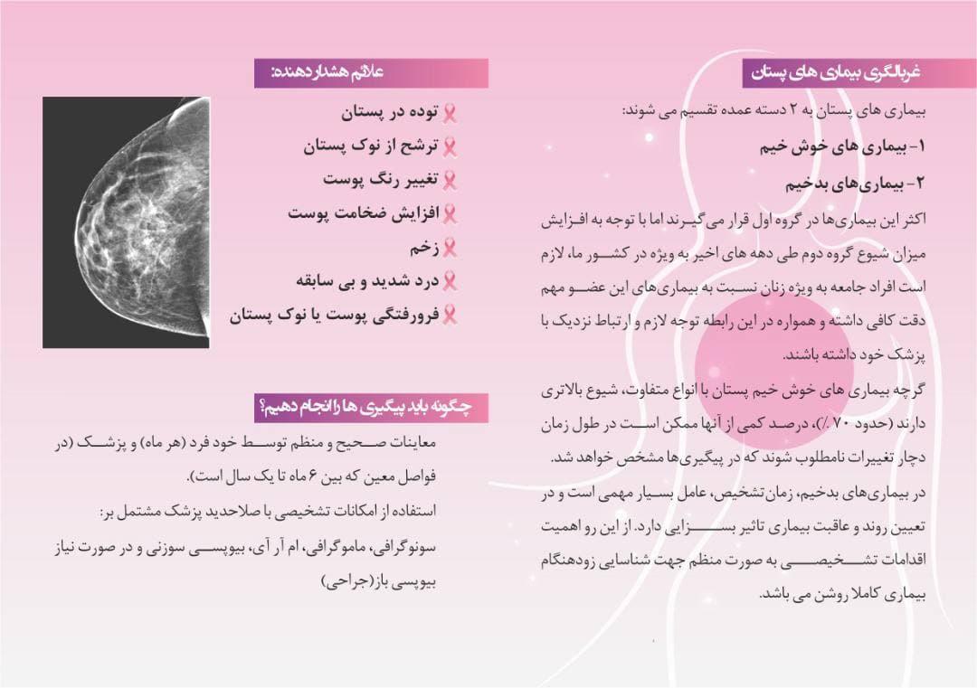 تشخيص بيماری های پستان